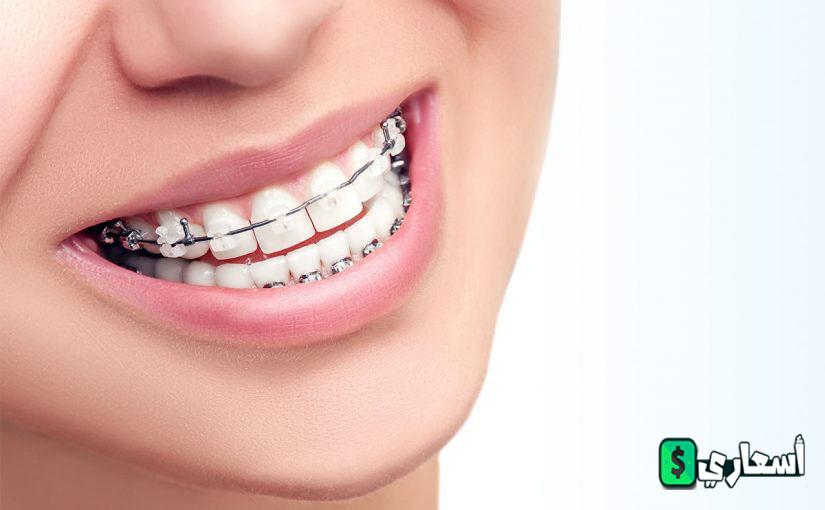اسعار تقويم الاسنان بالجنيه المصري
